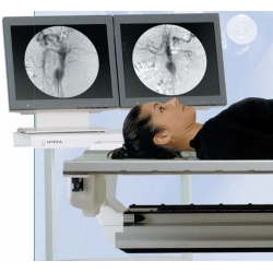 Fluoroscopie
